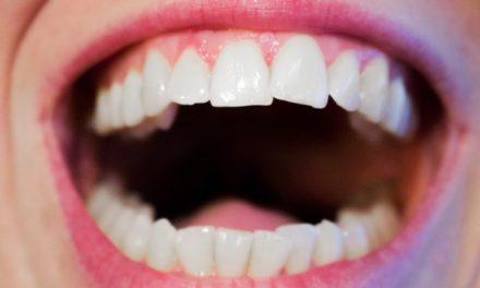 Détartrage en cabinet dentaire ou fait maison : lequel choisir ?